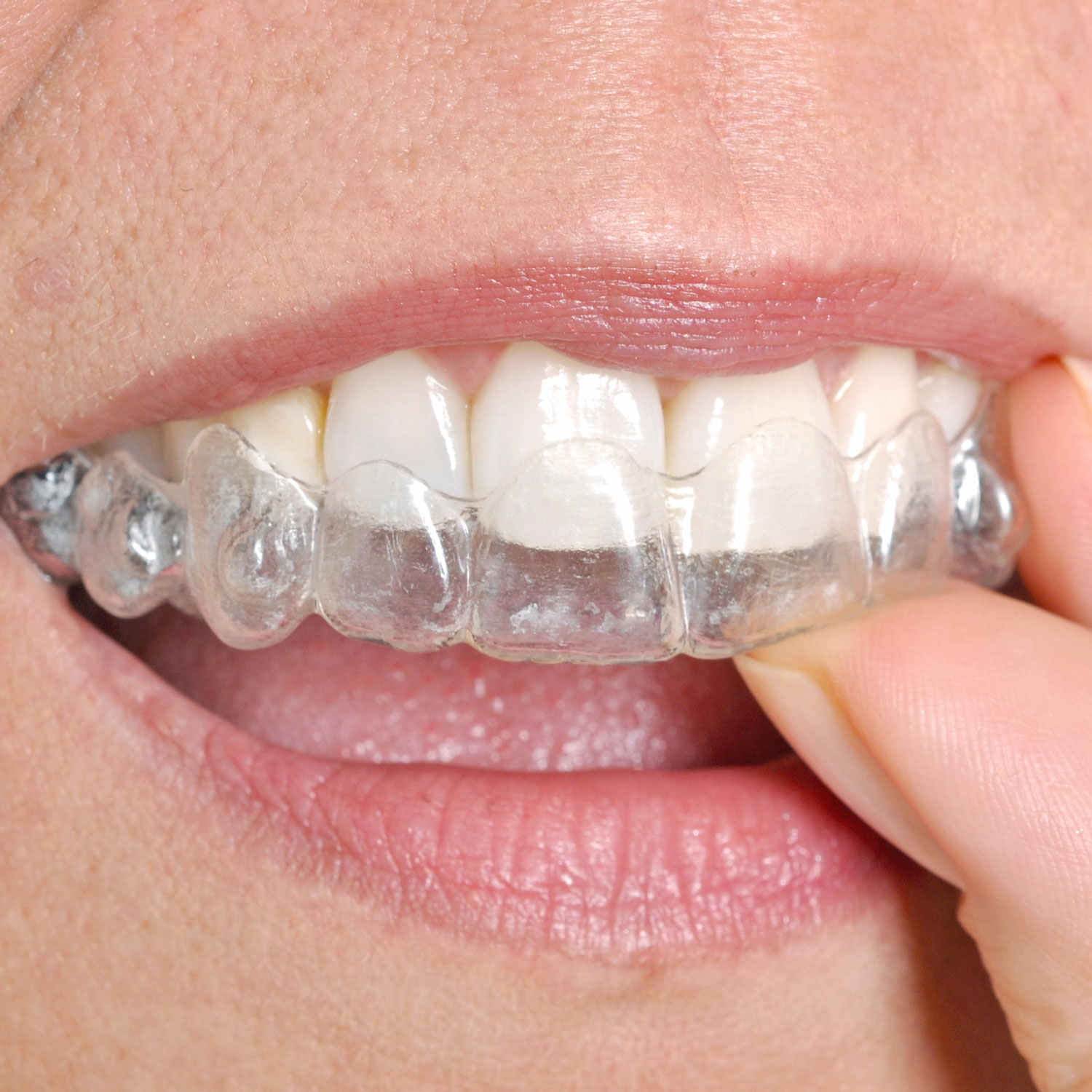 A person inserting Invisalign to their upper row of teeth