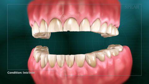 dental erosion thumbnail