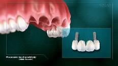 Implant-Supported Bridge thumbnail
