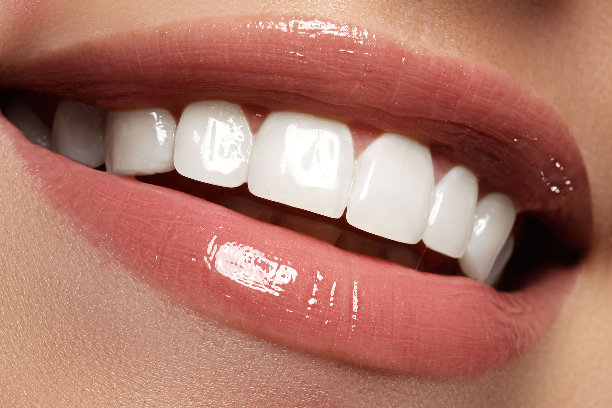 Close up image of smiling mouth with perfect straight white teeth and sparkly lipgloss